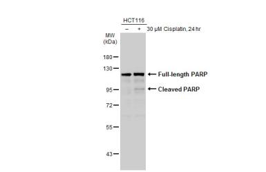 Anti-PARP antibody [N2C1], Internal used in Western Blot (WB). GTX112864