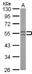Anti-Cytokeratin 8 antibody [N1C1] used in Western Blot (WB). GTX112975
