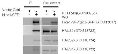 Anti-GFP antibody used in Western Blot (WB). GTX113617