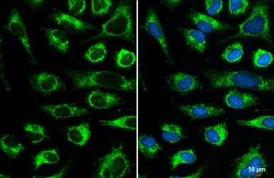 Anti-COX4 antibody used in Immunocytochemistry/ Immunofluorescence (ICC/IF). GTX114330