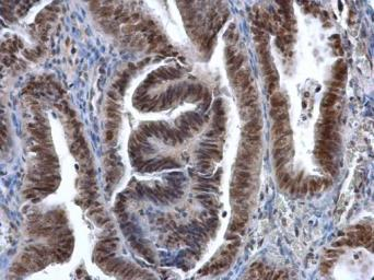 Anti-DNMT1 antibody [N1], N-term used in IHC (Paraffin sections) (IHC-P). GTX116011