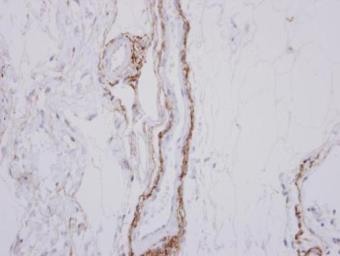 Anti-SH3MD2 antibody [N3C1], Internal used in IHC (Paraffin sections) (IHC-P). GTX116687