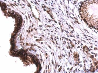 Anti-TET2 antibody [N2-2], N-term used in IHC (Paraffin sections) (IHC-P). GTX124205