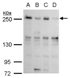 Anti-TET2 antibody [N2-2], N-term used in Western Blot (WB). GTX124205