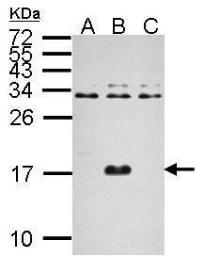 Anti-Dengue virus Capsid protein antibody used in Western Blot (WB). GTX124247