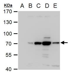 Anti-Dengue virus NS3 protein antibody used in Western Blot (WB). GTX124252