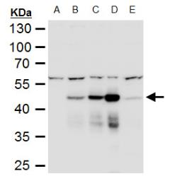 Anti-Dengue virus NS1 protein antibody used in Western Blot (WB). GTX124280