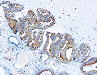 Anti-AMACR antibody used in IHC (Paraffin sections) (IHC-P). GTX12498