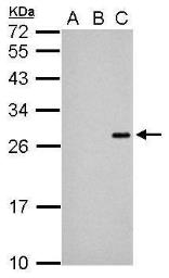 Anti-NS4B (JEV) antibody used in Western Blot (WB). GTX125865