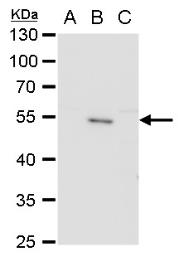 Anti-Envelope protein (JEV) antibody used in Western Blot (WB). GTX125867