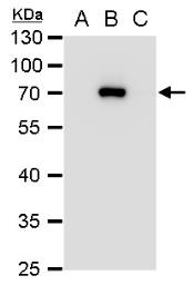 Anti-NS3 (JEV) antibody used in Western Blot (WB). GTX125868