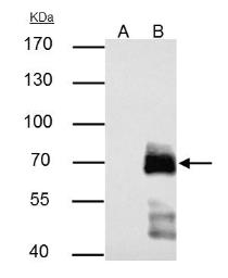 Anti-Paxillin antibody used in Immunoprecipitation (IP). GTX125891