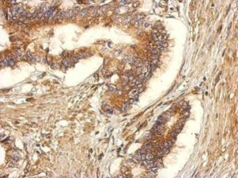 Anti-GEF-H1 antibody used in IHC (Paraffin sections) (IHC-P). GTX125893