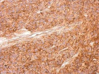 Anti-AICDA antibody used in IHC (Paraffin sections) (IHC-P). GTX127276