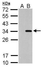 Anti-Strep epitope Tag antibody used in Western Blot (WB). GTX128061