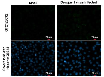 Anti-Dengue virus prM protein antibody used in Immunocytochemistry/ Immunofluorescence (ICC/IF). GTX128092