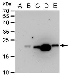 Anti-Dengue virus prM protein antibody used in Western Blot (WB). GTX128092