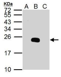 Anti-Dengue virus prM protein antibody used in Western Blot (WB). GTX128093