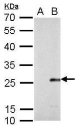 Anti-Influenza B Virus M antibody used in Western Blot (WB). GTX128537