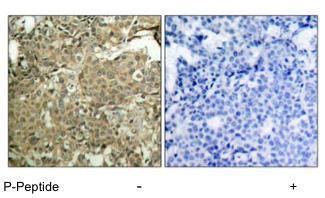 Anti-Cofilin 1 (phospho Ser3) antibody used in IHC (Paraffin sections) (IHC-P). GTX12866