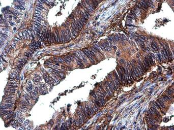 Anti-Integrin beta 1 / CD29 antibody used in IHC (Paraffin sections) (IHC-P). GTX128839