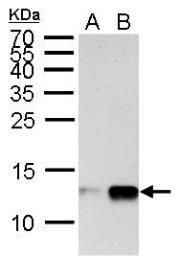 Anti-Histone H4K20me1 (monomethyl Lys20) antibody used in Western Blot (WB). GTX128959