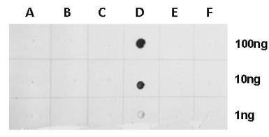 Anti-Histone H2BK20ac (acetyl Lys20) antibody used in Dot blot (Dot). GTX128962