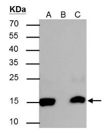 Anti-Histone H2BK20ac (acetyl Lys20) antibody used in Immunoprecipitation (IP). GTX128962