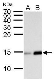 Anti-Histone H2BK20ac (acetyl Lys20) antibody used in Western Blot (WB). GTX128962