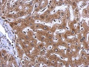 Anti-Visfatin antibody used in IHC (Paraffin sections) (IHC-P). GTX128980