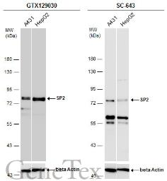 Anti-SP2 antibody used in Western Blot (WB). GTX129030