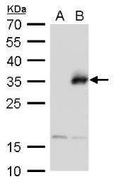 Anti-Neurogenin 1 antibody used in Western Blot (WB). GTX129224