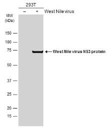 Anti-West Nile virus NS3 protein antibody used in Western Blot (WB). GTX131955