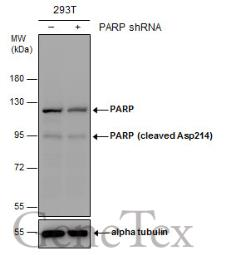 Anti-PARP (cleaved Asp214) antibody used in Western Blot (WB). GTX132329