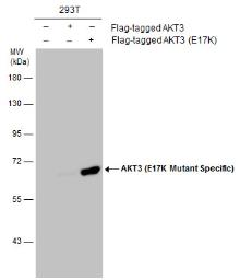 Anti-AKT3 (E17K Mutant Specific) antibody used in Western Blot (WB). GTX132417