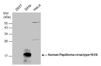 Anti-Human Papilloma virus type 16 E6 antibody used in Western Blot (WB). GTX132686