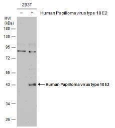Anti-Human Papilloma virus type 18 E2 antibody used in Western Blot (WB). GTX133373
