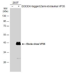 Anti-Ebola virus VP35 antibody used in Western Blot (WB). GTX134033