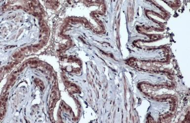 Anti-Bmi1 antibody - VetSignal used in IHC (Paraffin sections) (IHC-P). GTX134944