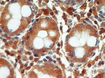 Anti-Caspase 3 antibody [31A1067] used in IHC (Paraffin sections) (IHC-P). GTX13585