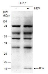 Anti-Hepatitis B Virus X Protein antibody [X36C] used in Western Blot (WB). GTX22741