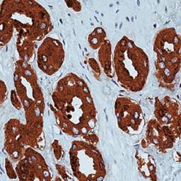 PSA-antibody_IHC (Formalin-fixed paraffin-embedded sections)_GTX29537-1_18121411_167.jpg