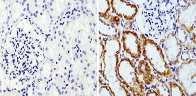 Anti-Rap1 antibody [1D2-1C64] used in IHC (Paraffin sections) (IHC-P). GTX31146