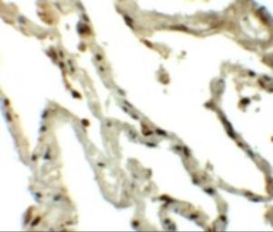 Anti-Translin antibody used in IHC (Paraffin sections) (IHC-P). GTX31440