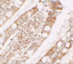 Anti-Lipin 1 antibody used in IHC (Paraffin sections) (IHC-P). GTX31547