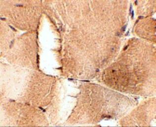 Anti-JPH1 antibody used in IHC (Paraffin sections) (IHC-P). GTX31783