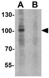 Anti-NDST2 antibody used in Western Blot (WB). GTX32135