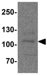 Anti-PACS1 antibody used in Western Blot (WB). GTX32158