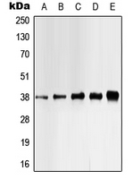 Anti-Casein Kinase 1 alpha (phospho Tyr321) antibody used in Western Blot (WB). GTX32170