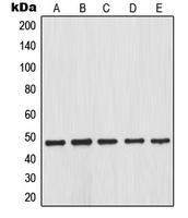 Anti-IKB beta (phospho Ser23) antibody used in Western Blot (WB). GTX32225